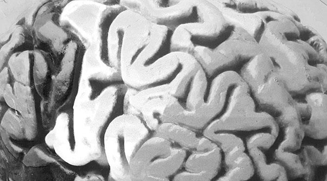 Conosciamo 538 geni del DNA relativi all'intelligenza …